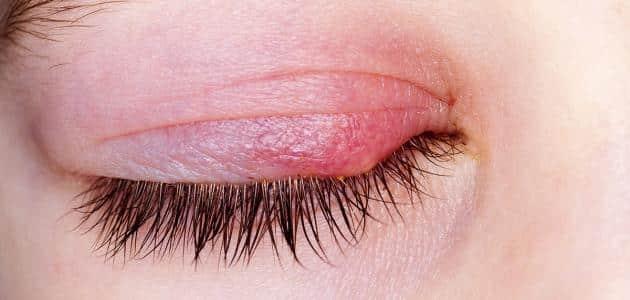 علاج التهاب جفن العين من الداخل