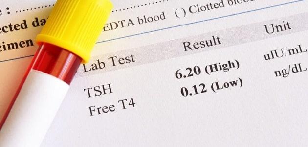 قراءة تحليل الهرمونات للرجال
