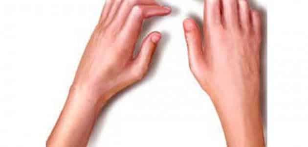 أعراض روماتيزم العضلات
