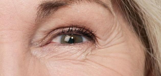 علاج التجاعيد تحت العين مجرب