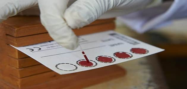 نتيجة تحليل pcr لفيروس سي